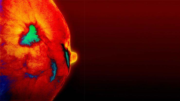 cancerul de san triplu negativ cancer genetic hits