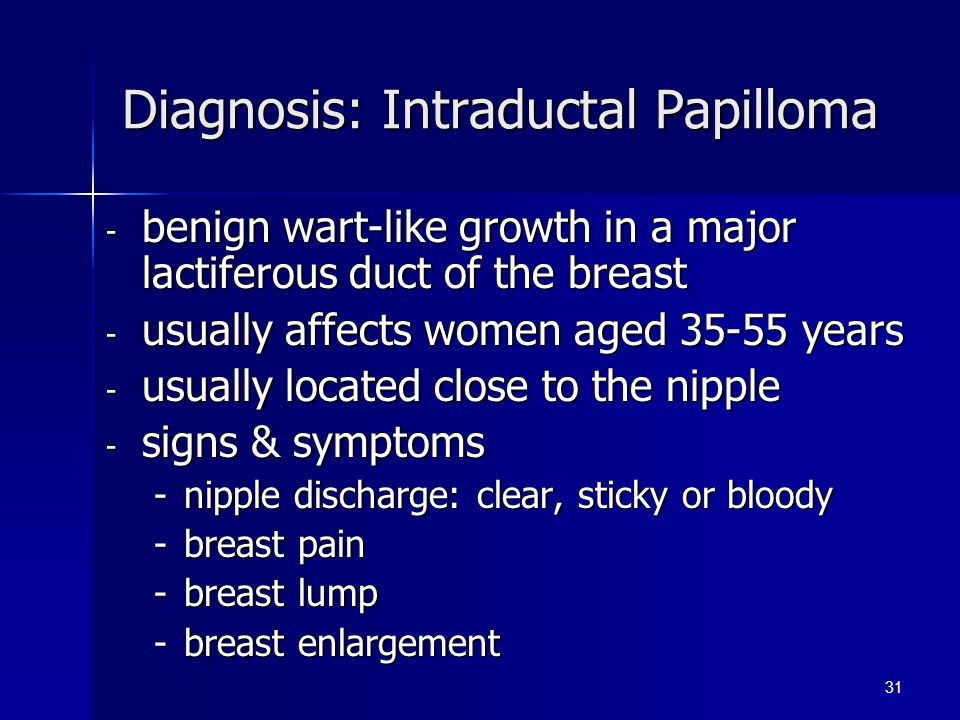 intraductal papilloma of breast treatment intraductal papilloma pain