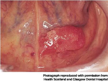 virus papiloma humano foro papilloma in mouth nhs