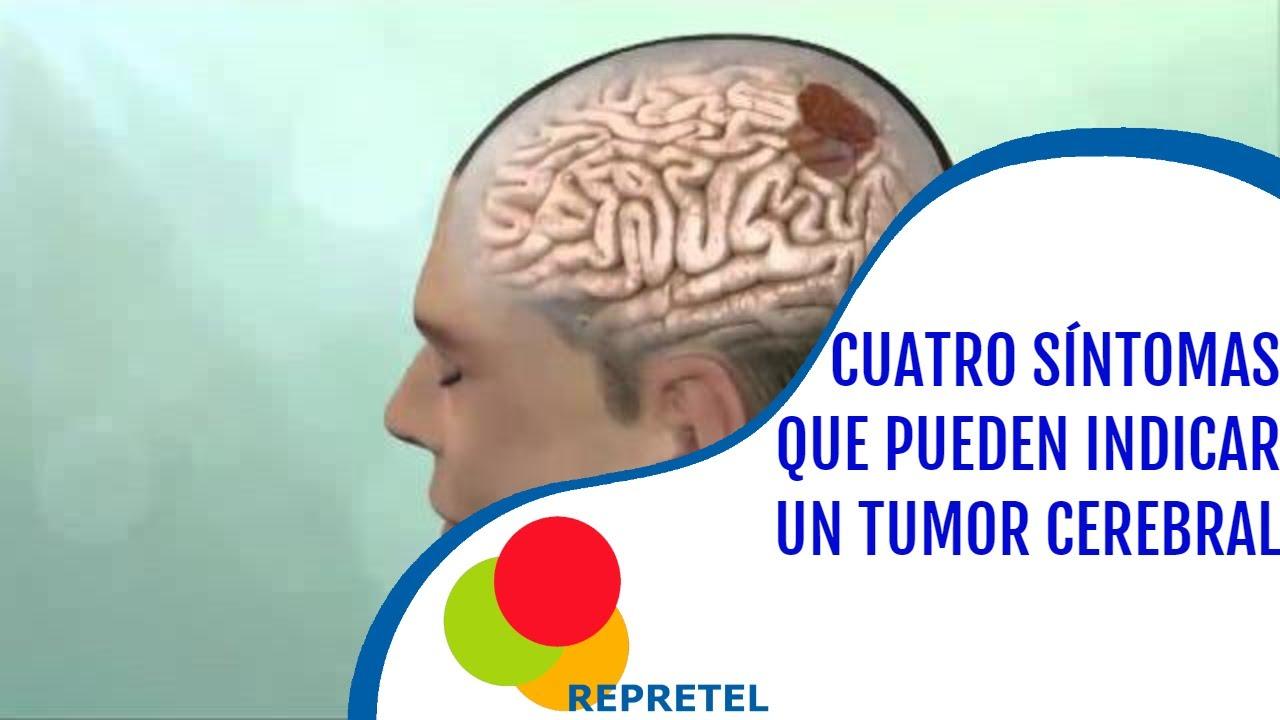 tumori pe creier - Traducere în spaniolă - exemple în română | Reverso Context