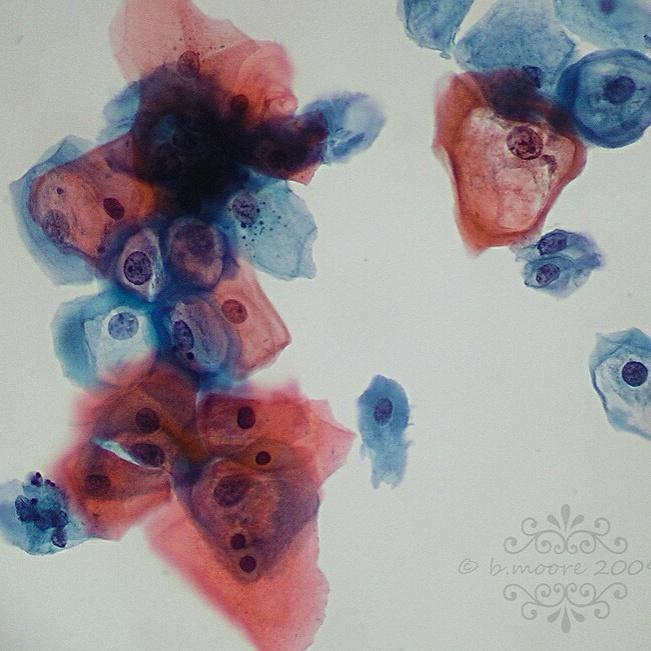 papiloma virus humano citologia papillomavirus et fertilite