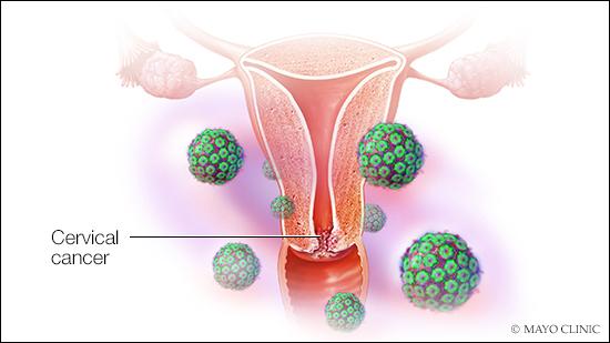 is hpv precancerous cells