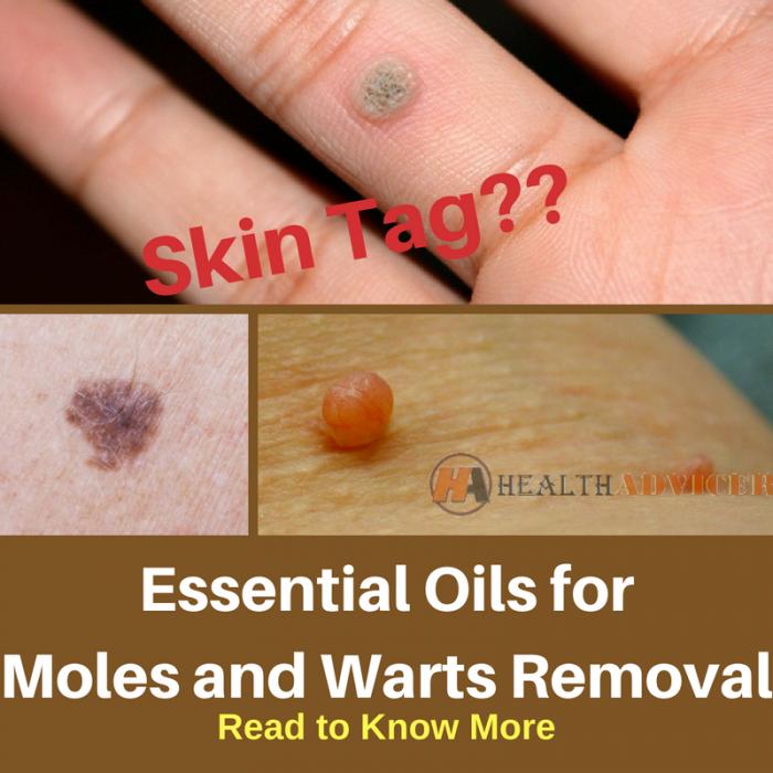 warts on hands essential oils miros urat dupa operatie de polipi