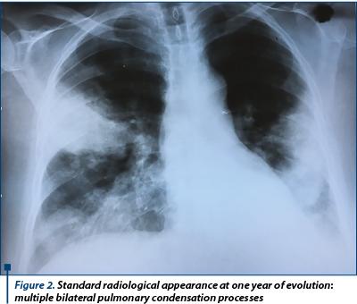 cancer pulmonar la 30 ani que es papiloma en medicina