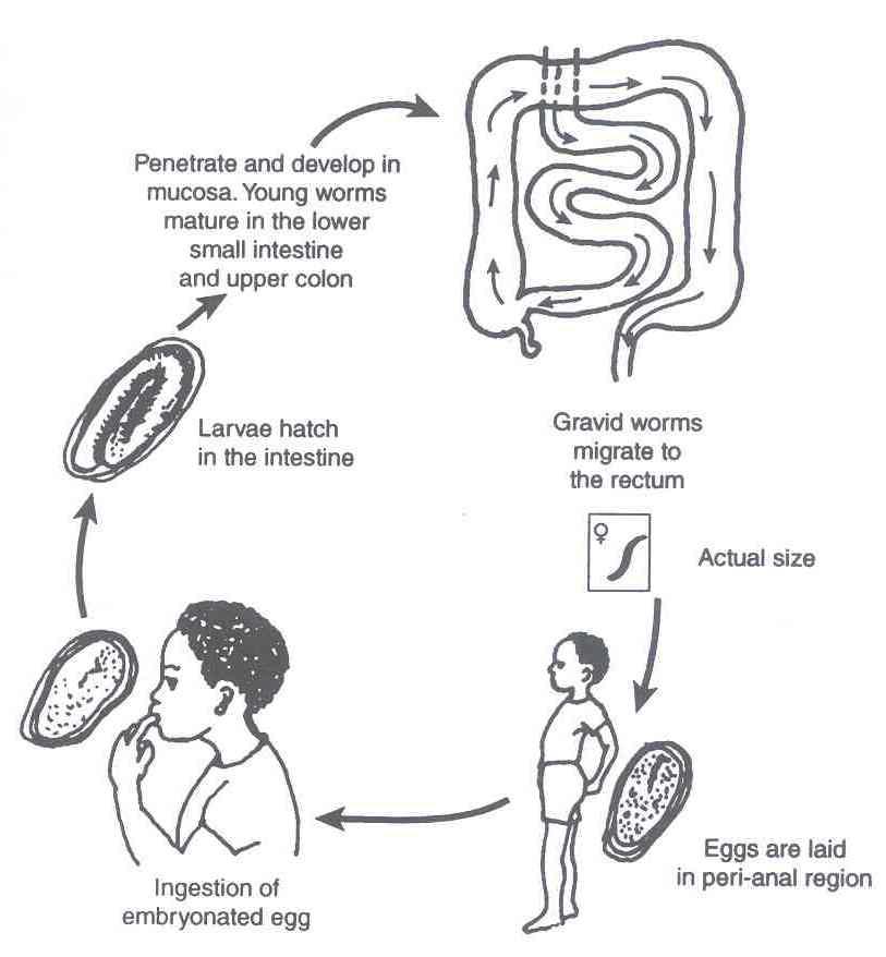 enterobius vermicularis reservoir virus del papiloma humano en mujeres tiene cura