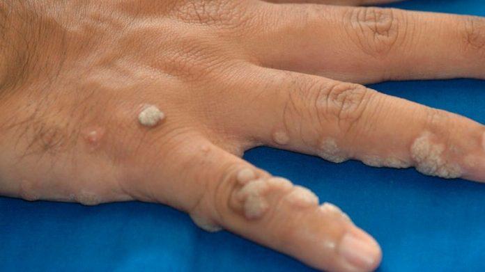 virus papiloma en la piel