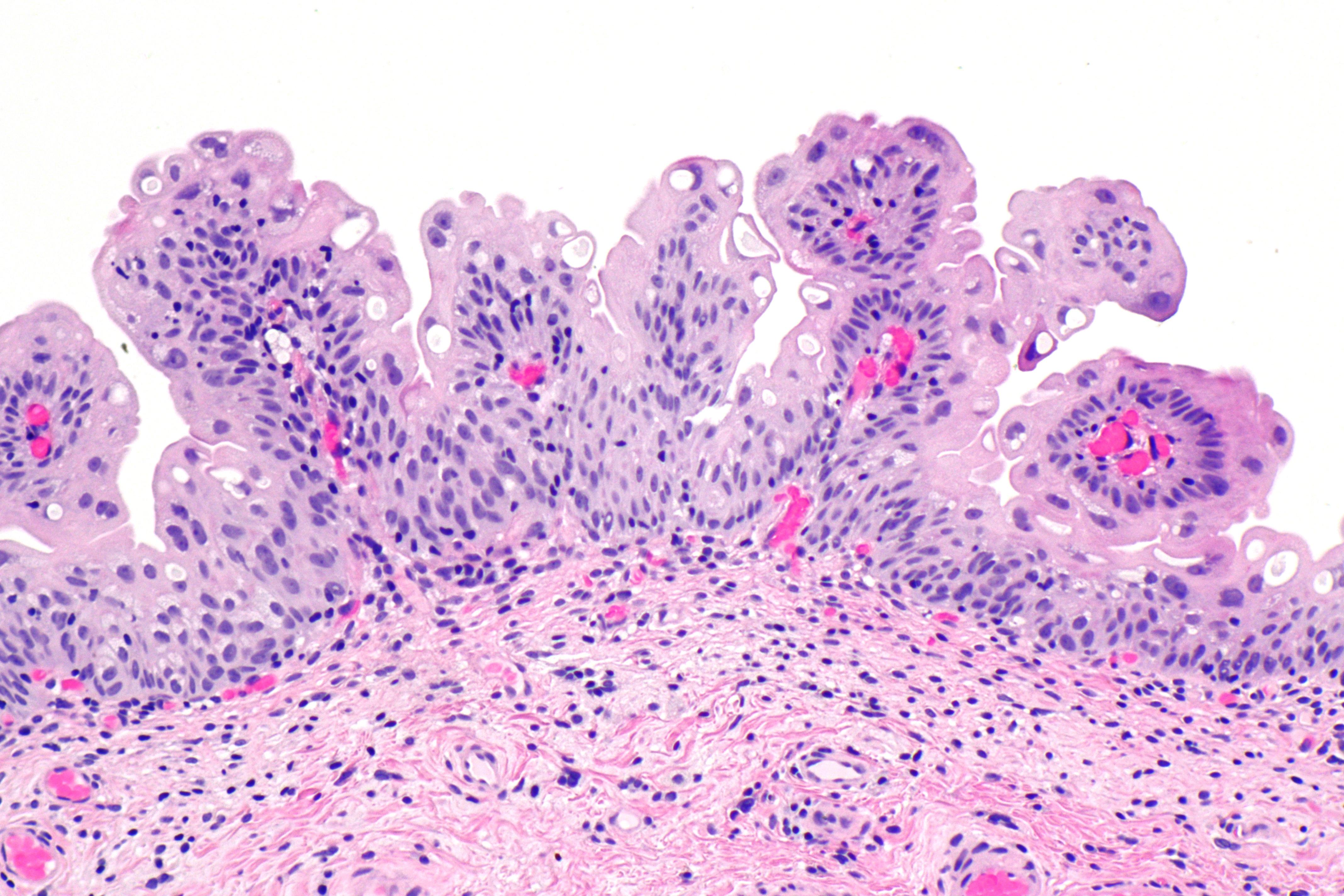 urothelial papilloma follow up