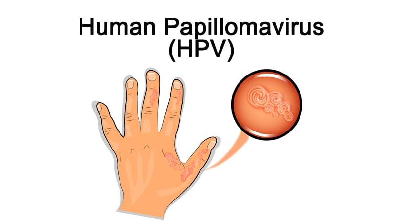 why is the papillomavirus dangerous