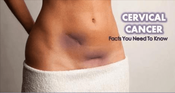 hpv cose sintomi uterine cancer without bleeding