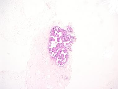treatment of helminth infection in pregnancy