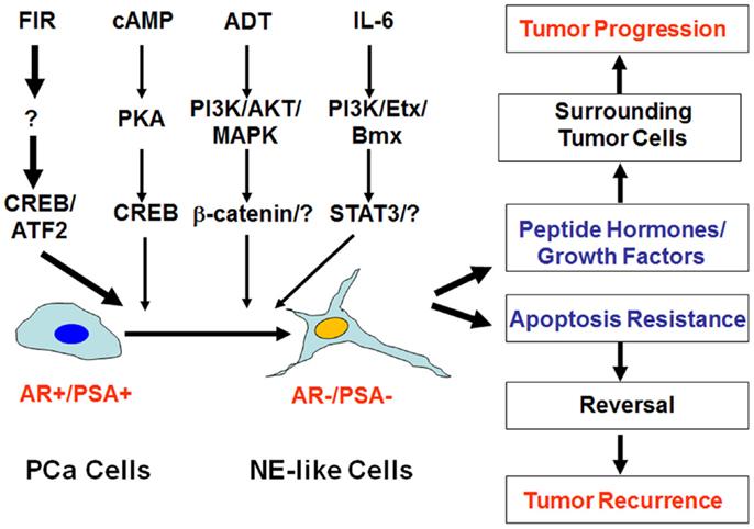 neuroendocrine cancer of prostate oxiuros tratamiento en ninos