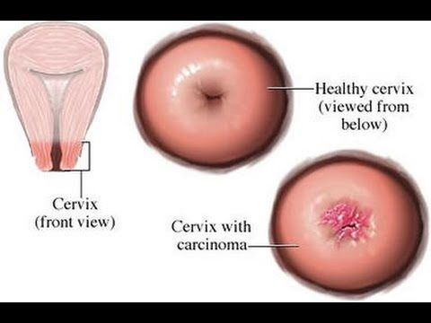 hpv risk for cancer warts unani treatment