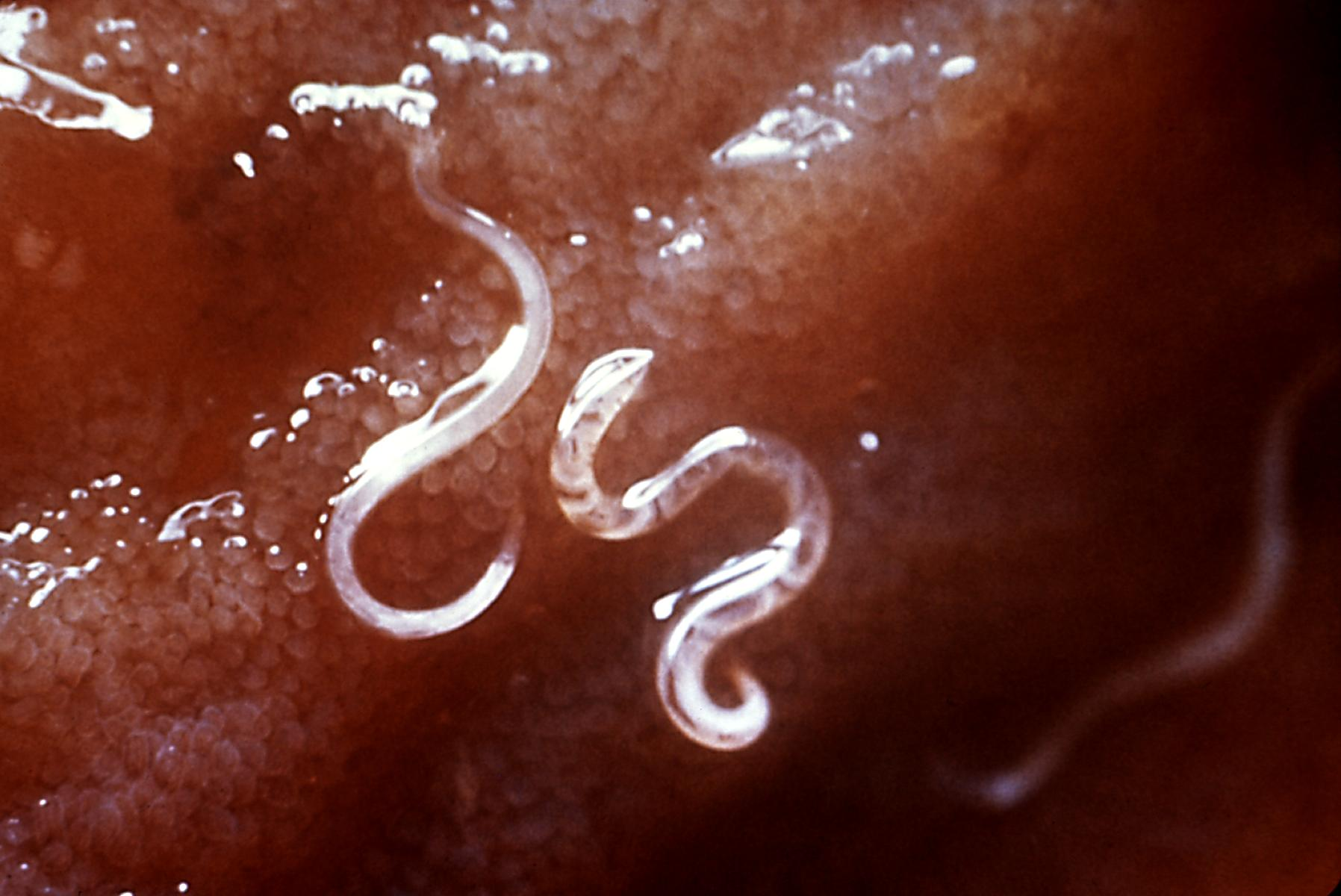 hookworm therapy side effects