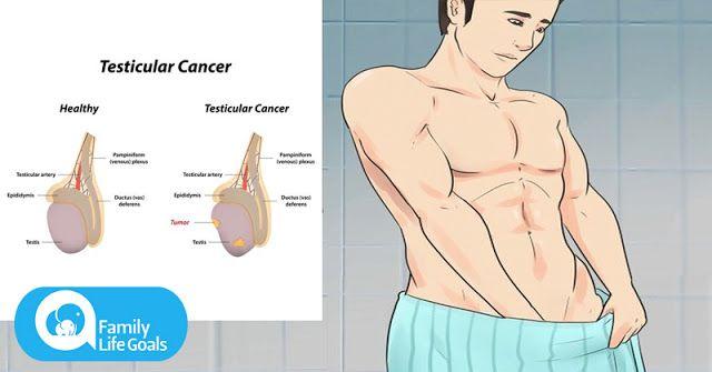 hpv e tumore