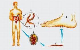 regim de detoxifiere colon cancer abdominal lump
