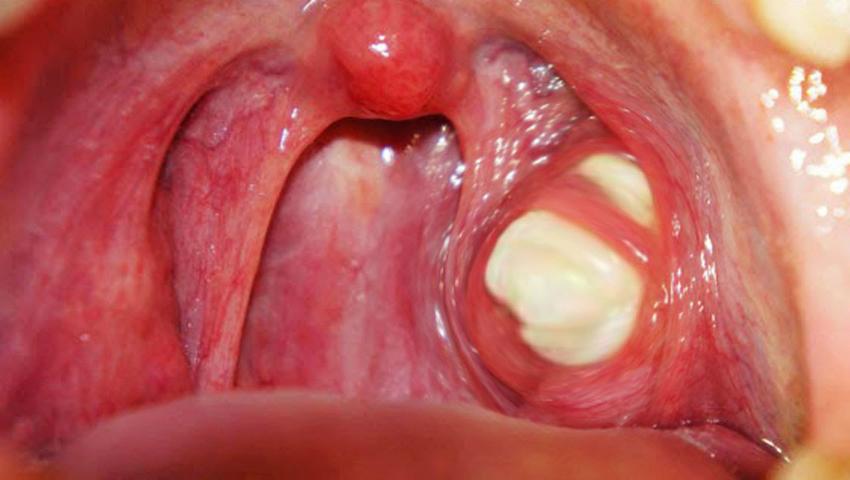 respiratie urat mirositoare de la amigdale excursie detoxifiere