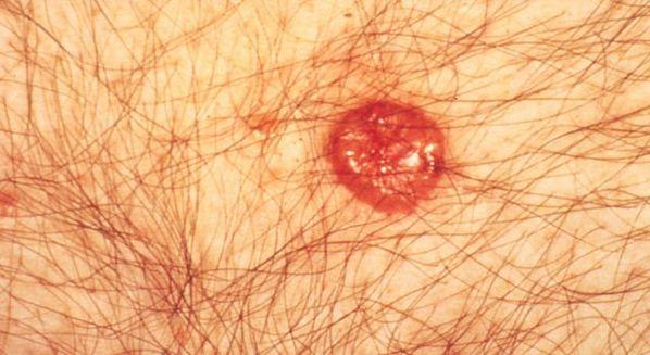 cancer epitelial sintomas hpv treatment london