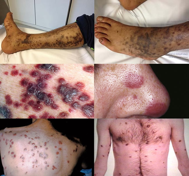 cancer burta simptome