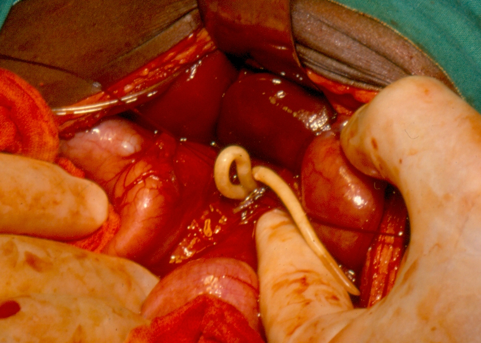 hpv virus ansteckung mann paraziti gliste kod ljudi