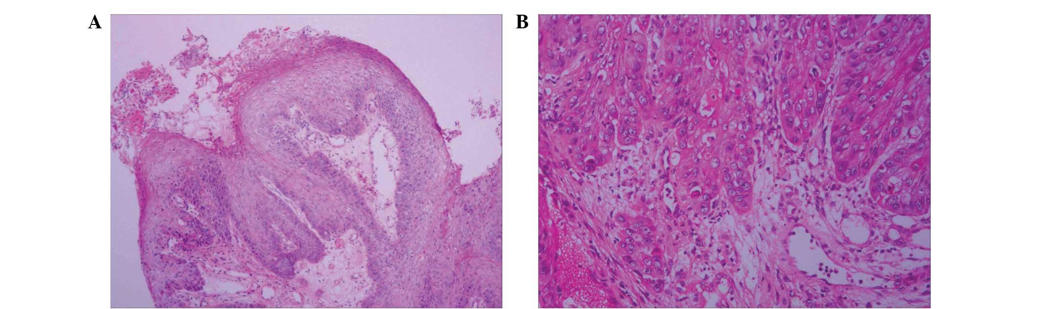 squamous cell papilloma histopathology tratament pt durerea de gat