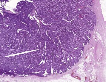 ductal papillomatosis icd 10 cancerul digestiv simptome
