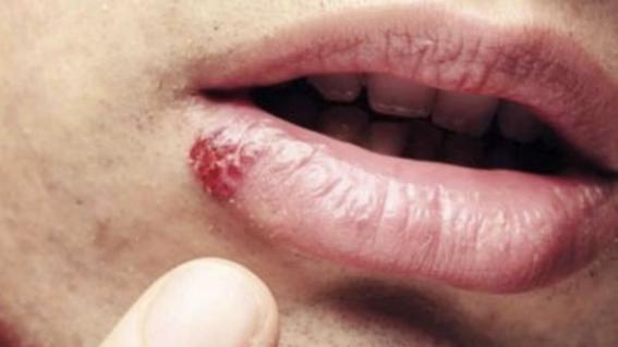 papiloma virus en boca detoxifierea organismului in timpul sarcinii