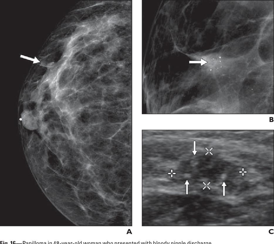 ciuperci a la creme ovarian cancer neoadjuvant chemotherapy