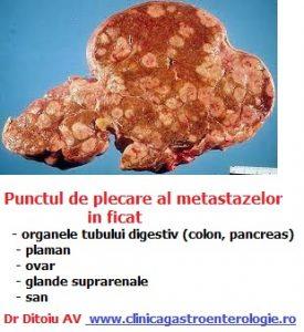 papilloma virus bocca test