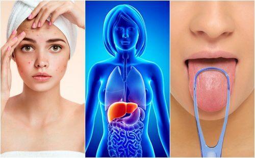 respiratory papillomatosis adalah