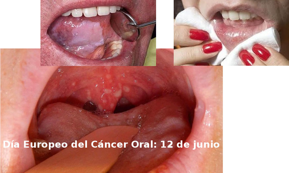 cancer bucal informacion hpv symptoms other than warts