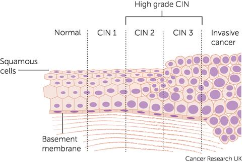 cancer cervical cells hpv ou herpes genital