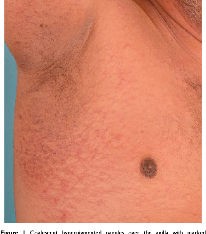 confluent and reticulated papillomatosis patient information
