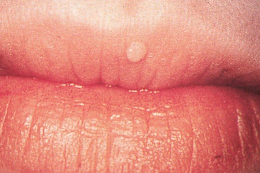 parazitii lacrimi de ceara mp3