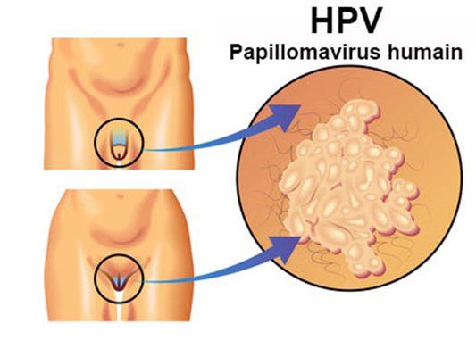 papillomavirus ganglion aine cancer familial aggregation
