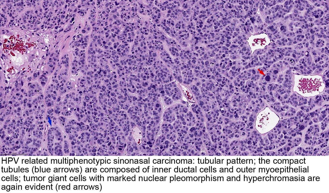 hpv nasopharyngeal carcinoma hpv impfung quecksilber