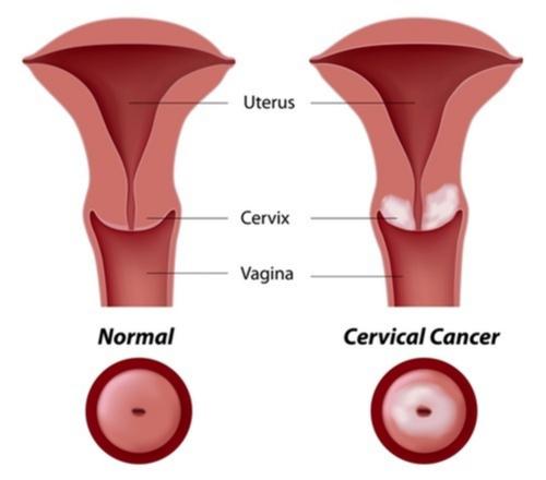 se vindeca cancerul de col uterin