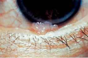 enterobiasis signs and symptoms cancer du col de luterus virus hpv