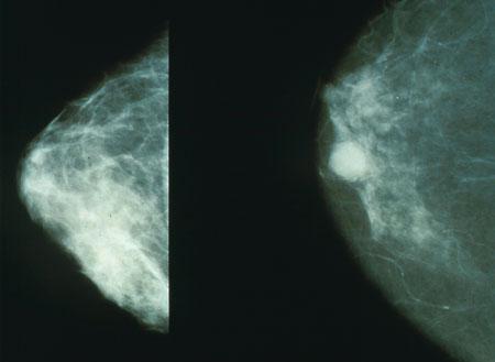 cancer mamar malign cancer gastric stadiul 4