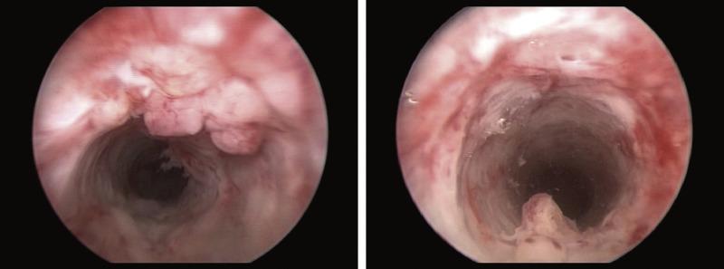 cancer on tip of urethra como eliminar los parasitos oxiuros en los ninos