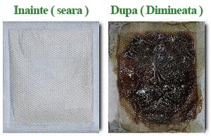 PLasturi detoxifiere