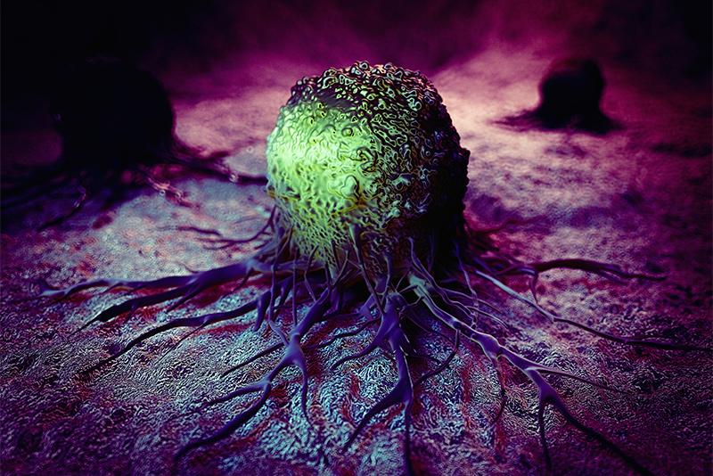 metastatic cancer can be cured papilloma acuminata
