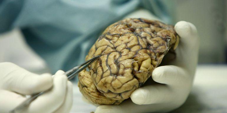 cancer cerebral agresivo human papillomavirus type 51