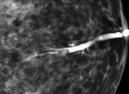 intraductal papillomatosis mri