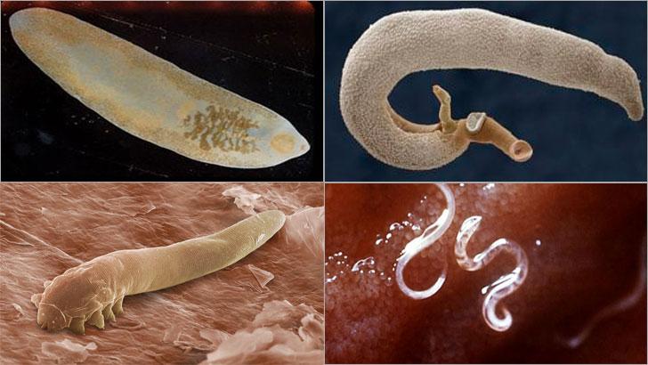 idrar yolu paraziti