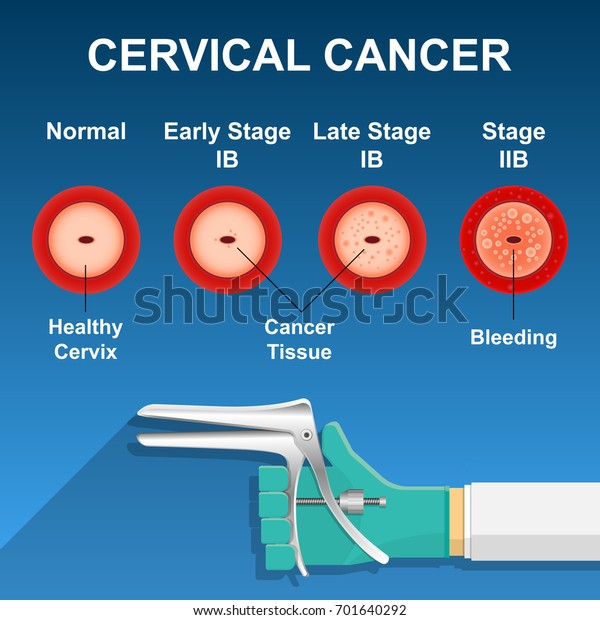hpv virus lab test hpv virus and tonsil cancer