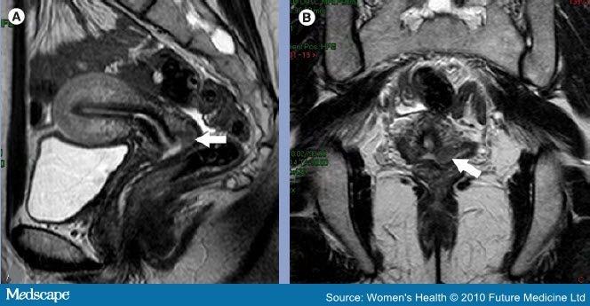 cervical cancer on mri hpv virusunun tedavisi var m?