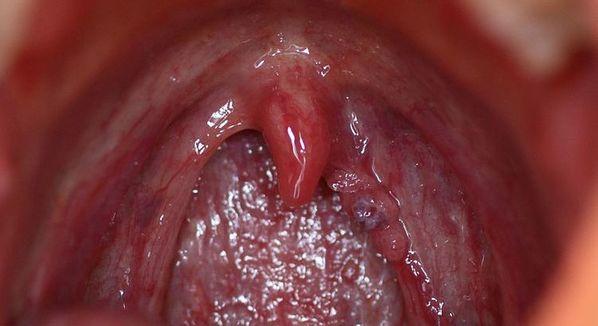 cancer laringe papiloma vaccin papillomavirus donne le cancer