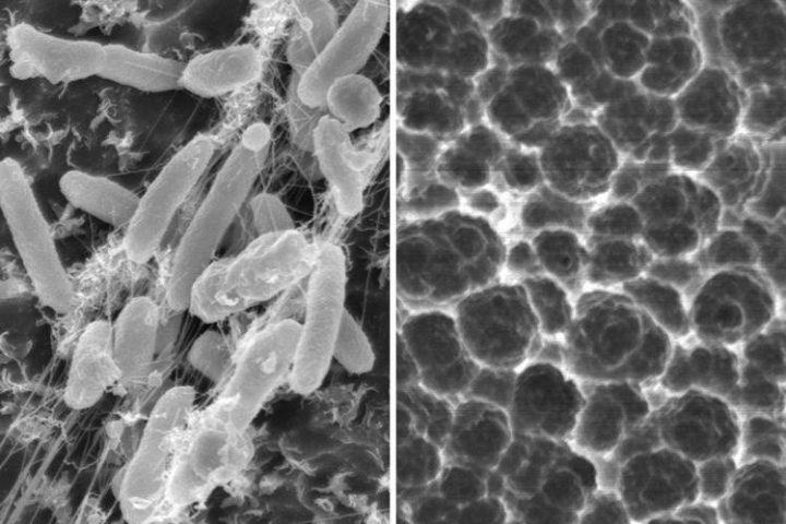bacterie qui mange du plastique hpv treatment warts