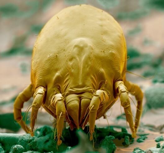 cancer cervical en hombre papilloma on eyelids