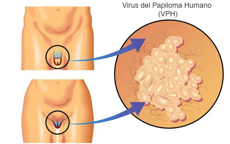 cancer la colon primele simptome